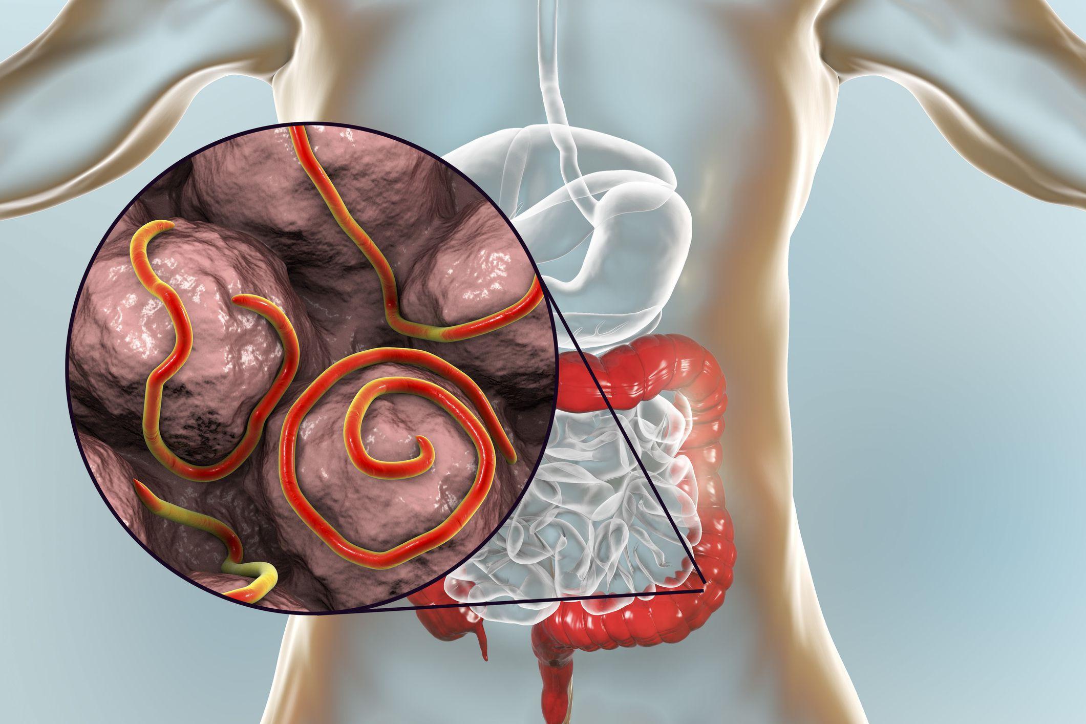 mik a tünetek a bőrön parazitákkal